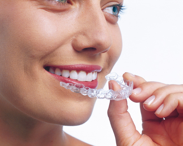 Invisalign invisible removable retainer