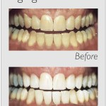 before /after teeth whitening