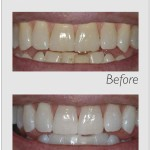 Before/after zoom whitening