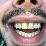 CM Post whitening and composites