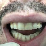 CM Pre-whitening and composites