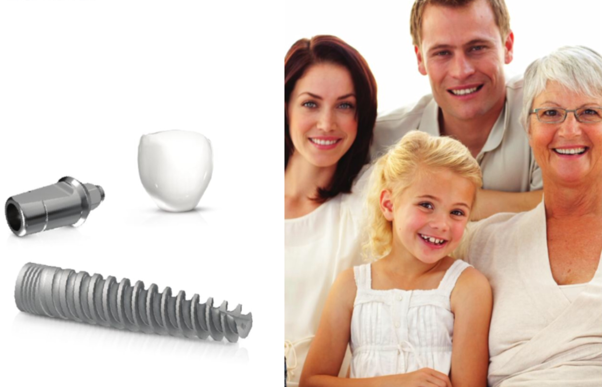 Family photo with implant graphic