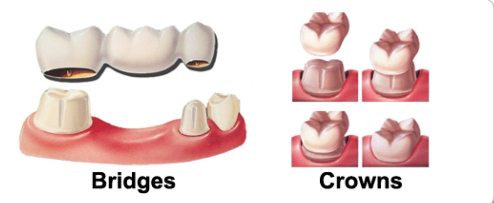 Bridges & crowns graphic