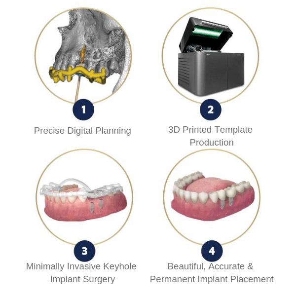 Guided-Implants-REPLACEDENT
