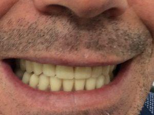 Post-dentures