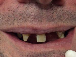 Pre-dentures