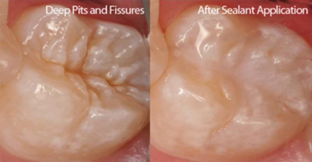 before/after fissure seals