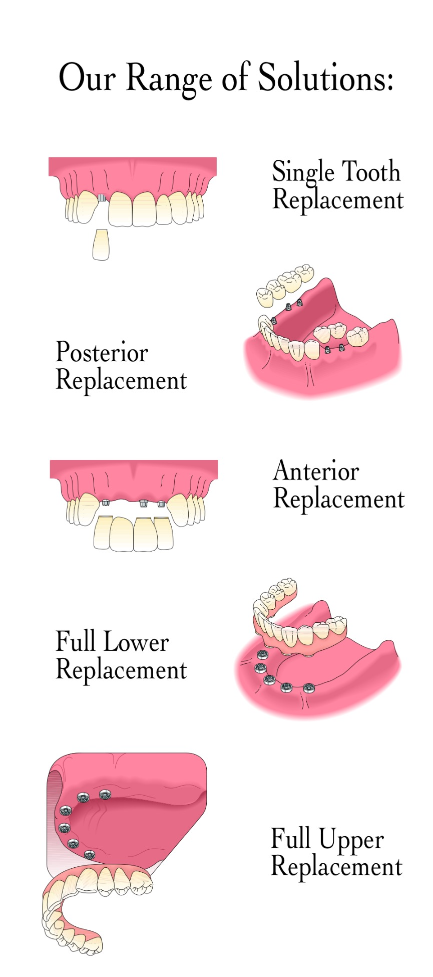 Implants graphic
