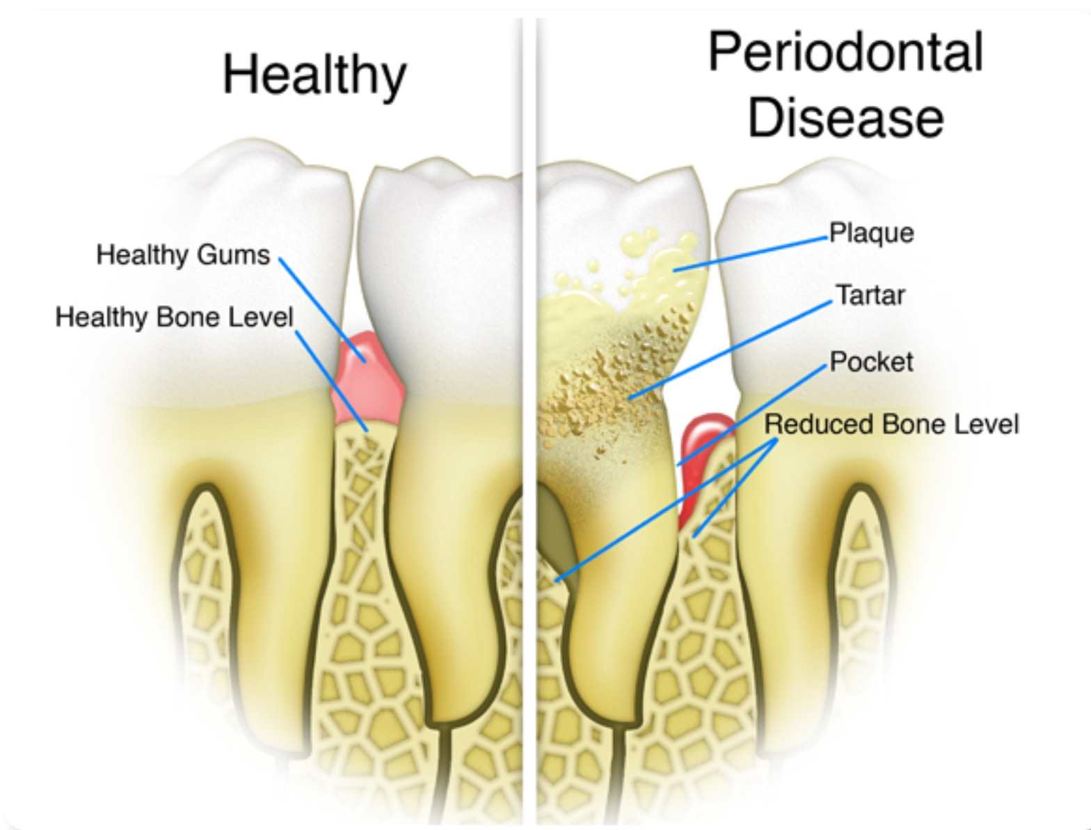 periodontal disease graphic