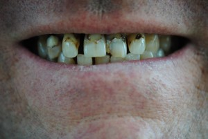 Before treatment smile case study