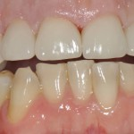 after veneers insert