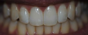 after invisalign whitening