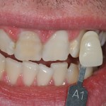 After zoom whitening & veneers