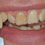 Before veneers - colour selection