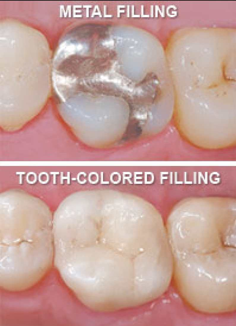 before/after tooth coloured fillings